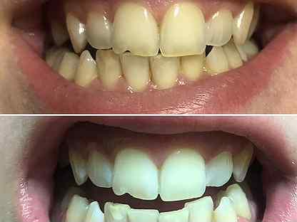 Зуб шестерка на картинке забывайте почаще